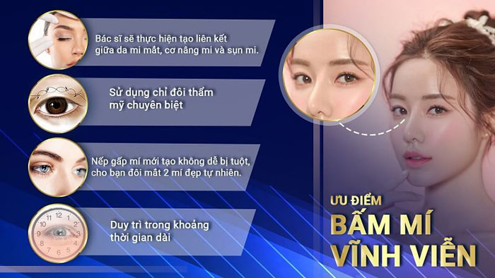 Bấm Mí Vĩnh Viễn Giúp Đôi Mắt Bạn 2 Mí Đẹp Xinh Lung Linh