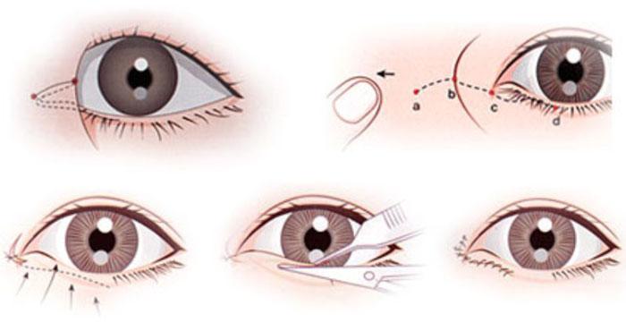 Mở Góc Mắt Trong Mini Đem Lại Đôi Mắt To Hút Hồn 2020