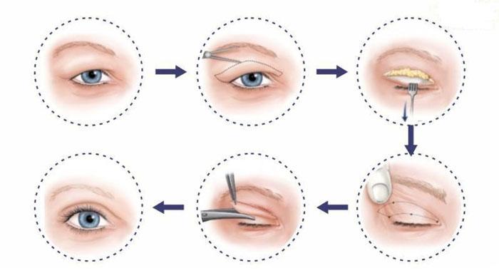 Tái Tạo Mỡ Mắt Làm Mắt Đầy Đặn Không Còn Lõm Sâu 2020
