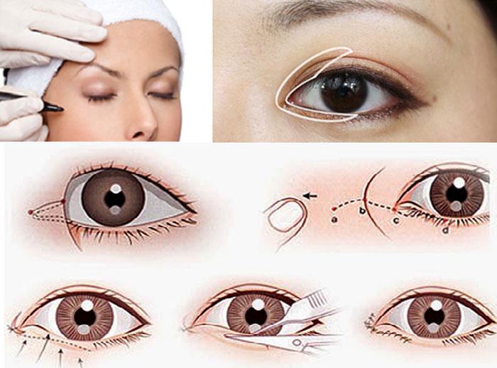 Tạo Hình Góc Mắt Trong Giúp Đôi Mắt To Tròn Long Lanh 2020