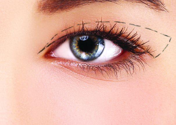 Bấm mí mắt ở đâu đẹp tại TPHCM