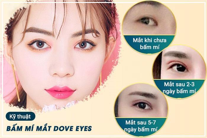 Bấm mí Dove Eyes giá bao nhiêu