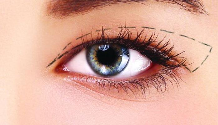 Cắt mí mắt có đau không