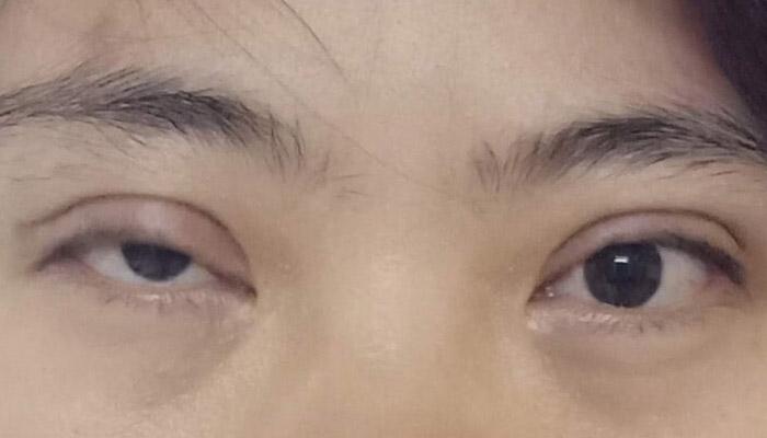 Cắt Mí Mắt Quá Dài Có Khắc Phục Được Không?