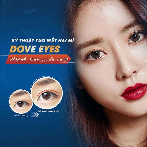 Bấm Mí Dove Eyes Là Gì?