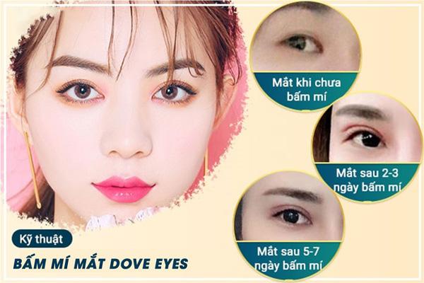 Kỹ Thuật Bấm Mí Dove Eyes Là Gì?