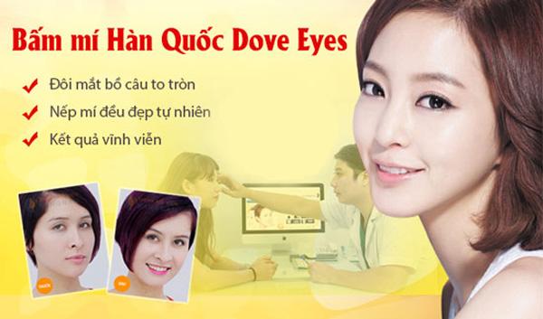 Bấm Mí Hàn Quốc Dove Eyes Tạo Mắt 2 Mí To Tròn