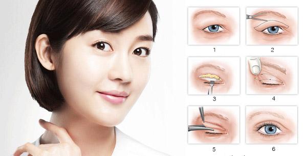 Cắt Mí Hàn Quốc Là Gì? Là Công Nghệ Tạo Hình Mí Mắt Hiện Đại Nhất