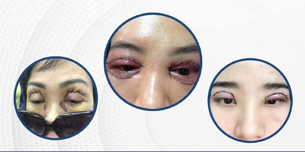 Sửa Mí Mắt Bị Hỏng Hiệu Quả