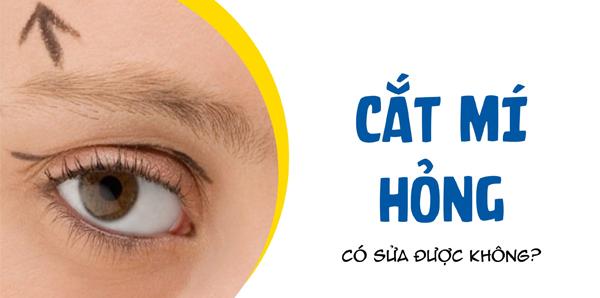 Sửa Mí Mắt Bị Hỏng An Toàn