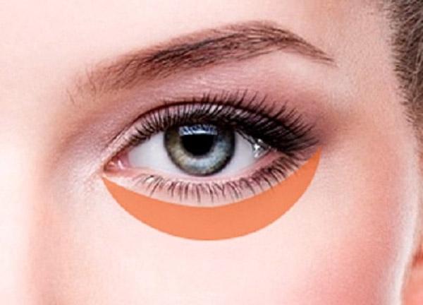 Phẫu Thuật Lấy Mỡ Bọng Mắt Giá Bao Nhiêu?