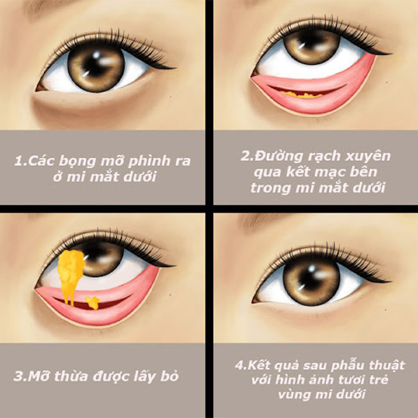 Lấy Mỡ Bọng Mắt Ở Đâu Đẹp?