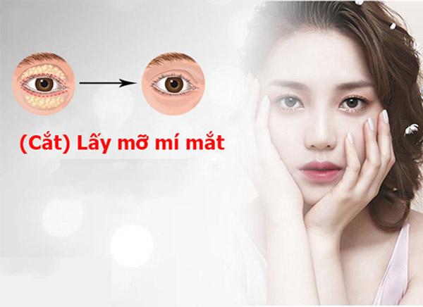 Lấy Mỡ Mí Mắt Ở Đâu Tốt Nhất Sài Gòn?
