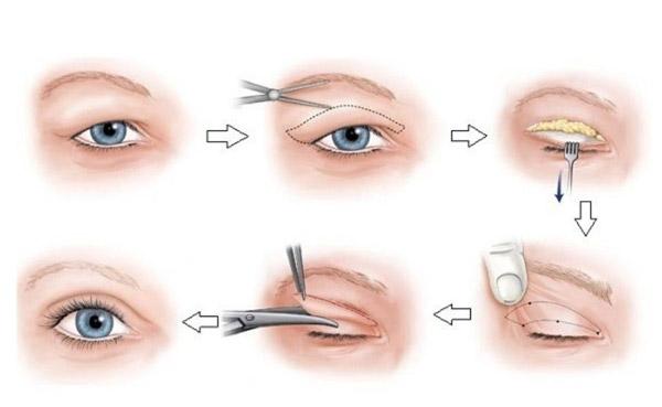 Lấy Mỡ Mí Mắt Ở Đâu Tốt Nhất TPHCM?